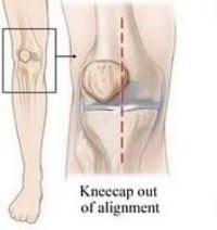 Patella Alignment