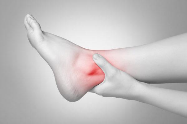 a woman having ankle sprain