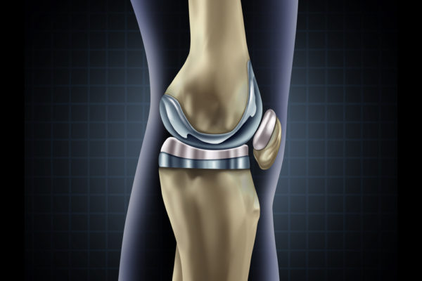Knee Joint Replacement Rehab