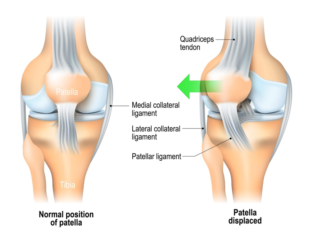 displaced patella position compared with its normal position