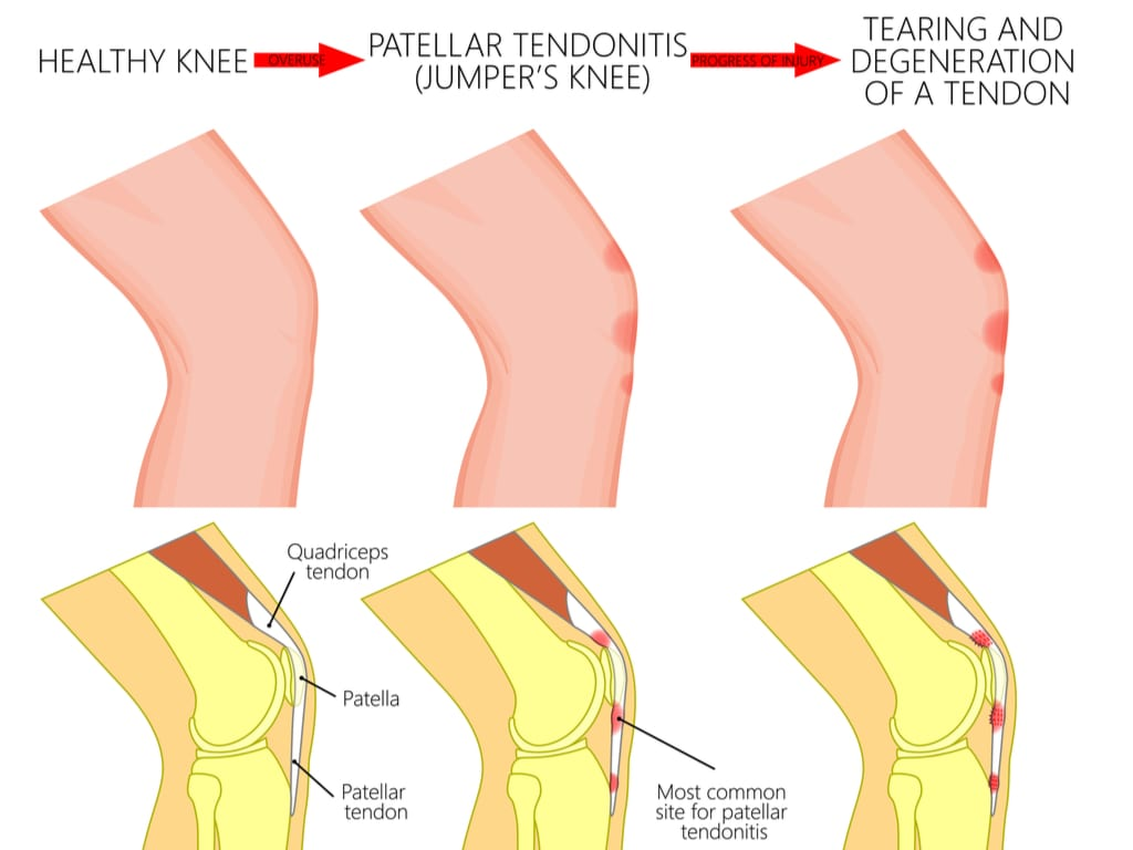 tearing and degeneration of a tendon