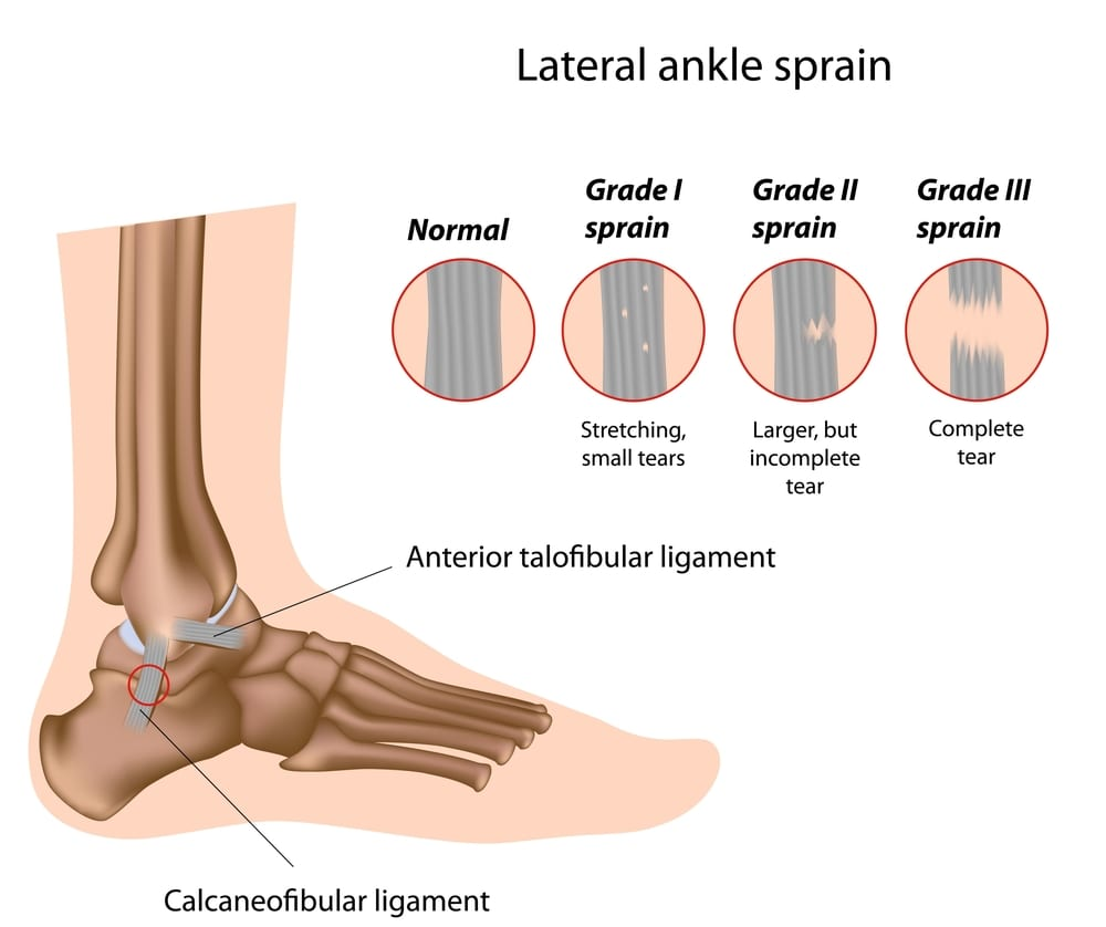 lateral ankle sprain explanation